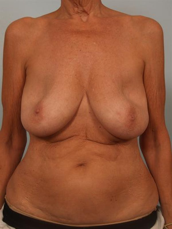 Breast Lift Gallery - Patient 1310930 - Image 1