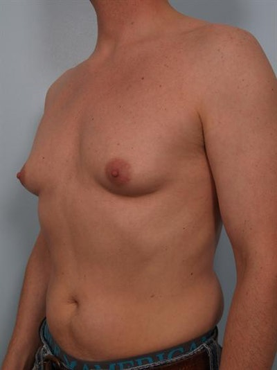 Male Breast/Areola Reduction Gallery - Patient 1310925 - Image 1