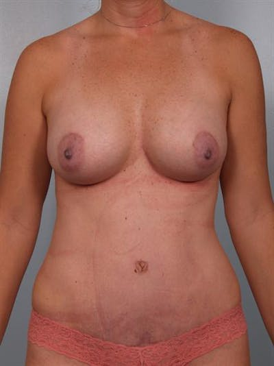 Mommy Makeover Gallery - Patient 1310928 - Image 2