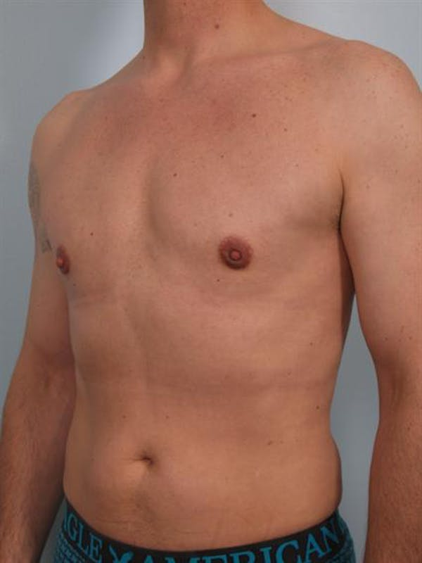 Male Breast/Areola Reduction Gallery - Patient 1310925 - Image 2