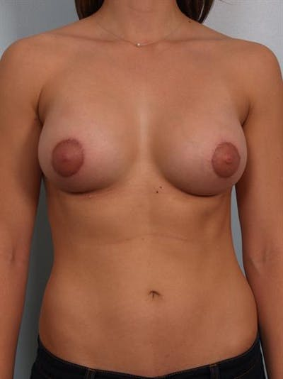 Breast Augmentation Gallery - Patient 1310929 - Image 2