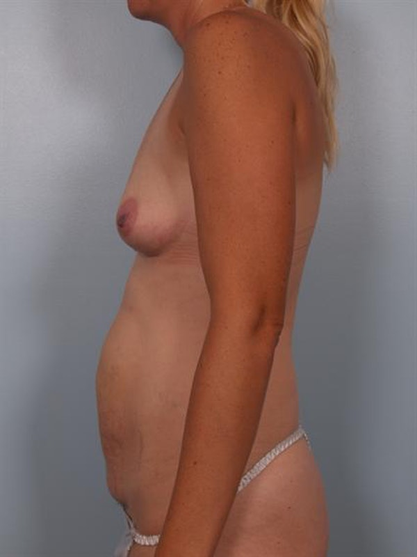 Mommy Makeover Gallery - Patient 1310928 - Image 3