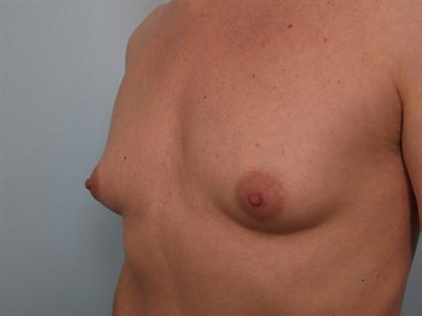 Male Breast/Areola Reduction Gallery - Patient 1310925 - Image 5