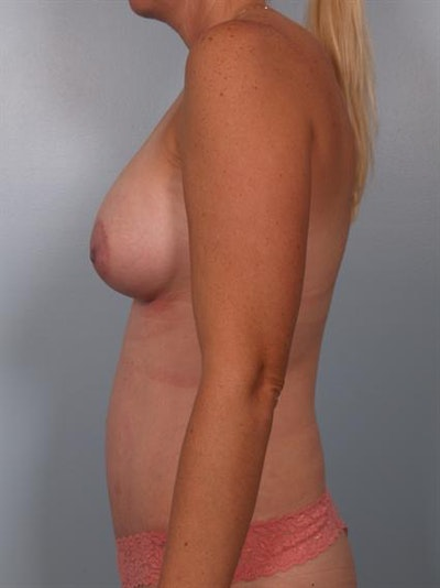 Mommy Makeover Gallery - Patient 1310928 - Image 4