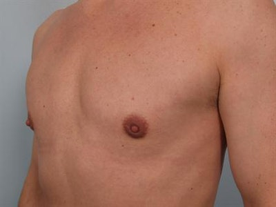 Male Breast/Areola Reduction Gallery - Patient 1310925 - Image 6