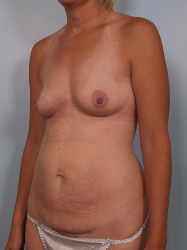 Mommy Makeover Gallery - Patient 1310928 - Image 5