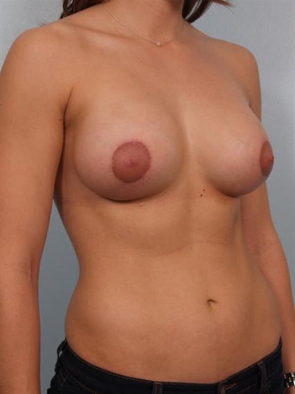 Breast Augmentation Gallery - Patient 1310929 - Image 6