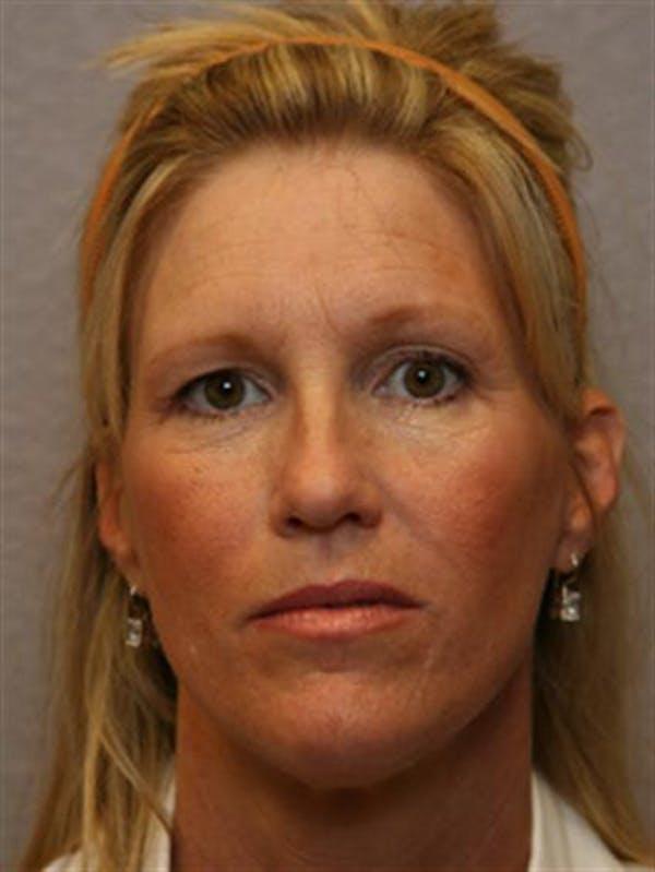 Botox Gallery - Patient 1310931 - Image 3