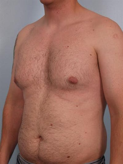Male Breast/Areola Reduction Gallery - Patient 1310934 - Image 1