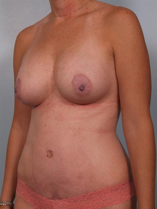 Mommy Makeover Gallery - Patient 1310928 - Image 6
