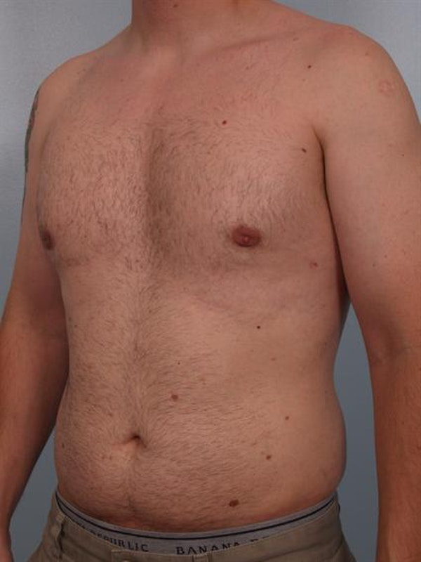 Male Breast/Areola Reduction Gallery - Patient 1310934 - Image 2
