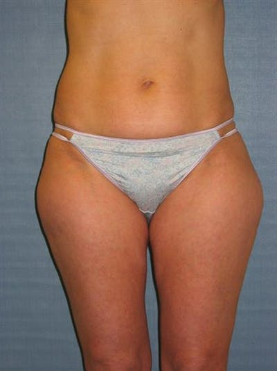 Power Assisted Liposuction Gallery - Patient 1310933 - Image 1