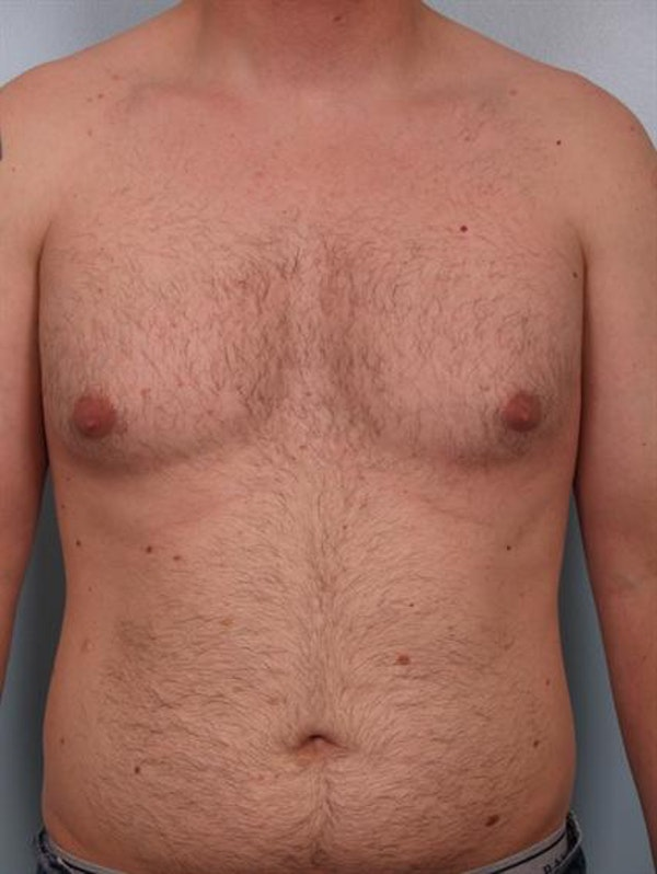 Male Breast/Areola Reduction Gallery - Patient 1310934 - Image 3