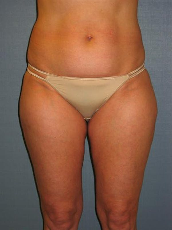 Power Assisted Liposuction Gallery - Patient 1310933 - Image 2