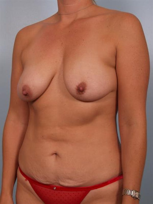 Breast Lift Gallery - Patient 1310936 - Image 3