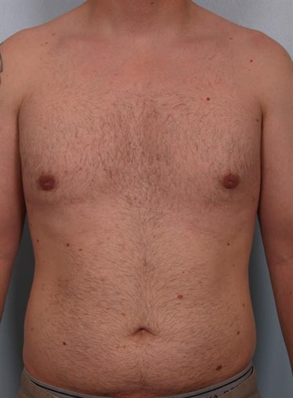 Male Breast/Areola Reduction Gallery - Patient 1310934 - Image 4