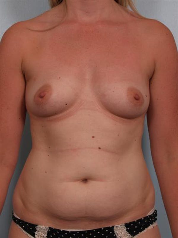 Mommy Makeover Gallery - Patient 1310935 - Image 1