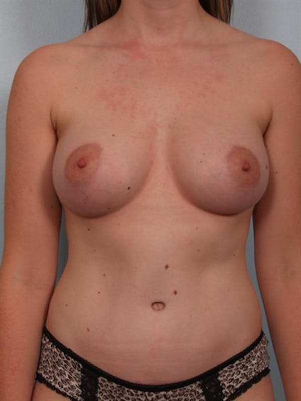Mommy Makeover Gallery - Patient 1310935 - Image 2