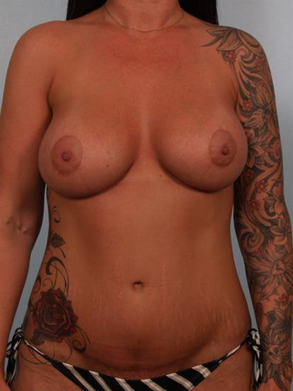 Breast Augmentation Gallery - Patient 1310937 - Image 2