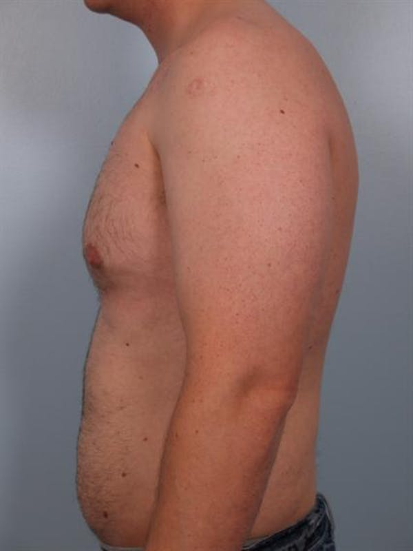 Male Breast/Areola Reduction Gallery - Patient 1310934 - Image 5