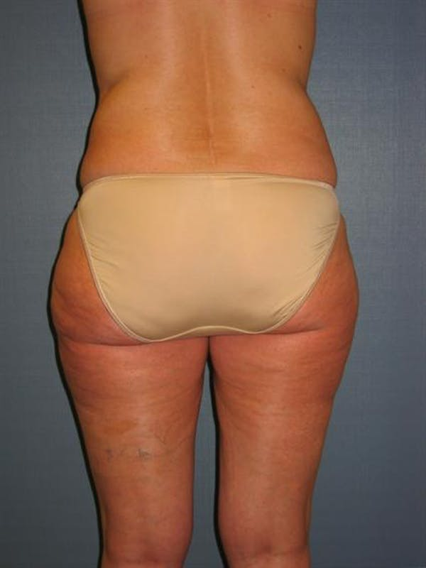 Power Assisted Liposuction Gallery - Patient 1310933 - Image 4