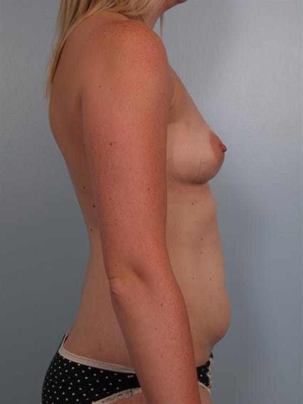 Mommy Makeover Gallery - Patient 1310935 - Image 3