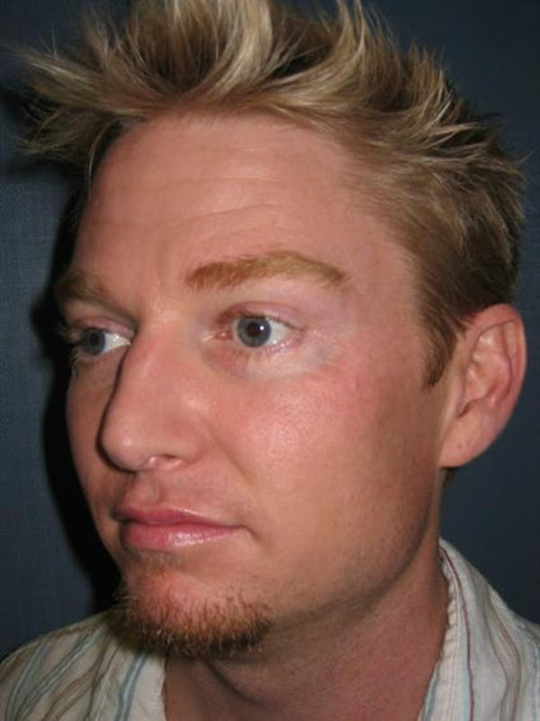 Botox Gallery - Patient 1310939 - Image 1