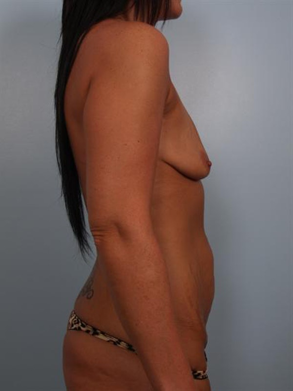 Breast Augmentation Gallery - Patient 1310937 - Image 3