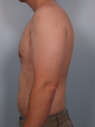 Male Breast/Areola Reduction Gallery - Patient 1310934 - Image 6