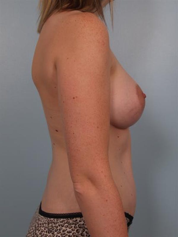 Mommy Makeover Gallery - Patient 1310935 - Image 4