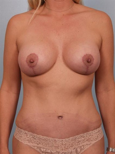 Breast Lift Gallery - Patient 1310936 - Image 2