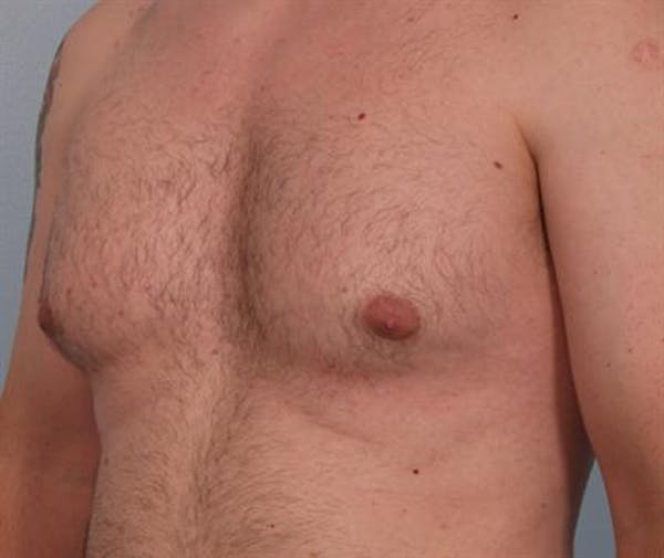 Male Breast/Areola Reduction Gallery - Patient 1310934 - Image 7