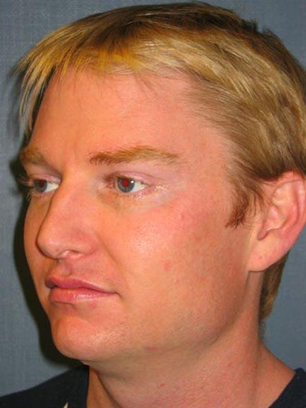 Botox Gallery - Patient 1310939 - Image 2