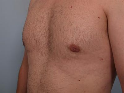 Male Breast/Areola Reduction Gallery - Patient 1310934 - Image 8