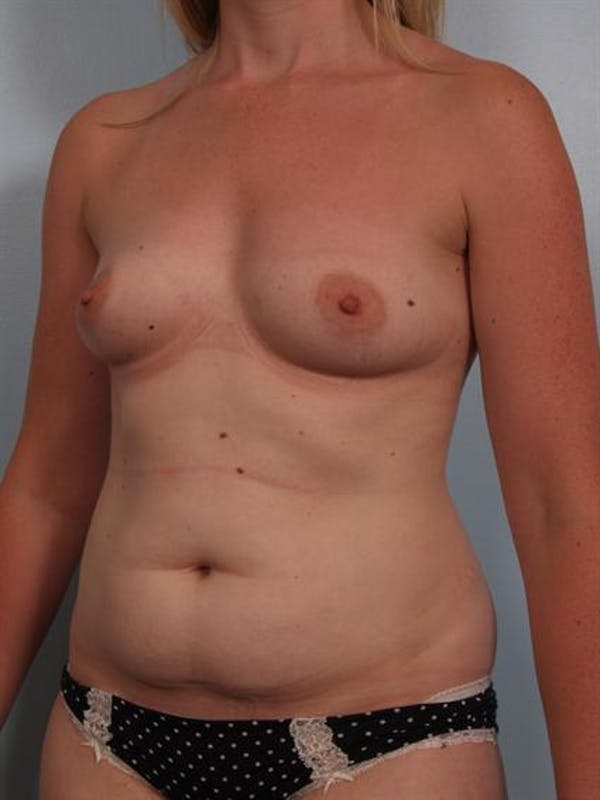Mommy Makeover Gallery - Patient 1310935 - Image 5