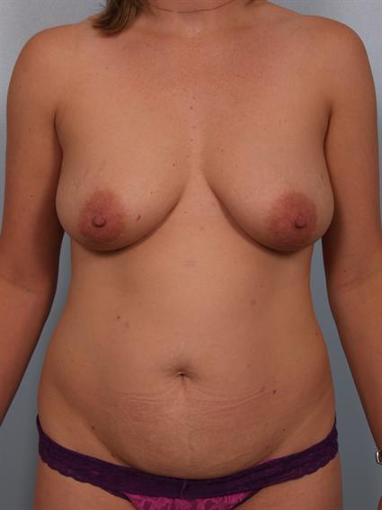 Image4 - Before and after image of Tummy Tuck by Dr. Cohen.