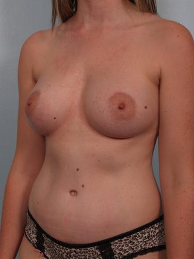 Mommy Makeover Gallery - Patient 1310935 - Image 6