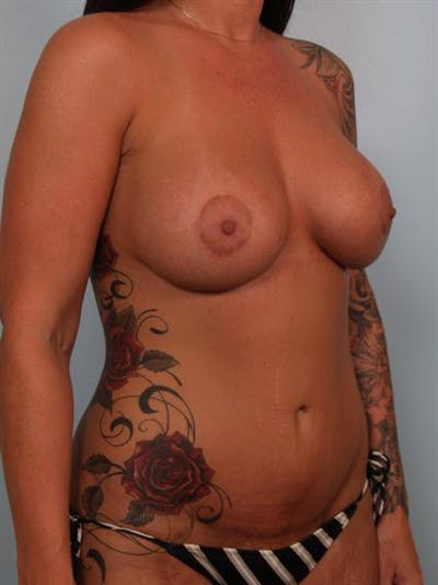 Breast Augmentation Gallery - Patient 1310937 - Image 6
