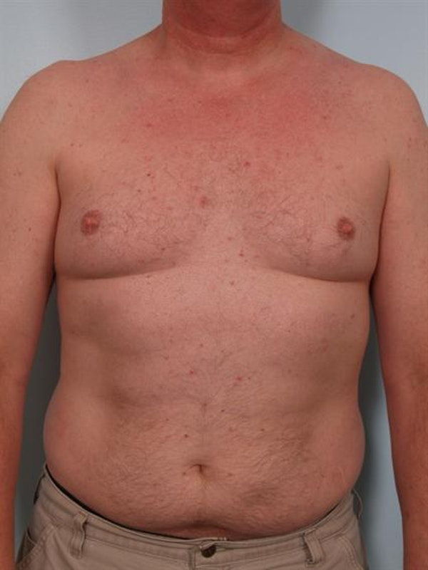Male Breast/Areola Reduction Gallery - Patient 1310942 - Image 1