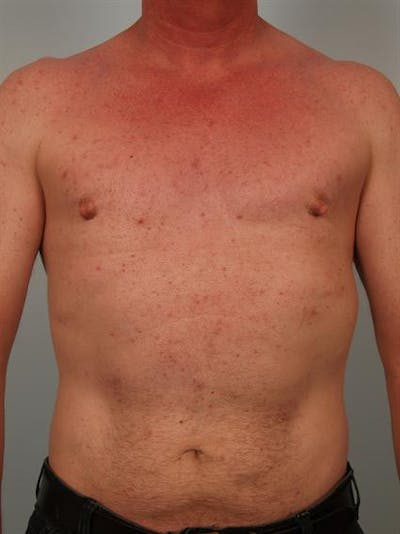Male Breast/Areola Reduction Gallery - Patient 1310942 - Image 2