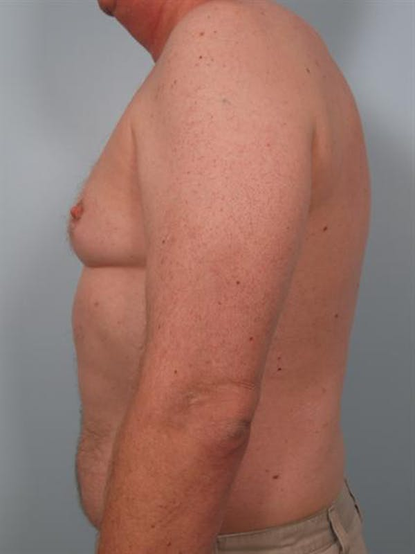 Male Breast/Areola Reduction Gallery - Patient 1310942 - Image 3