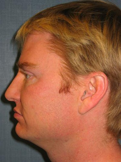 Botox Gallery - Patient 1310939 - Image 6