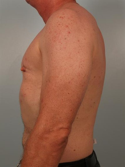 Male Breast/Areola Reduction Gallery - Patient 1310942 - Image 4
