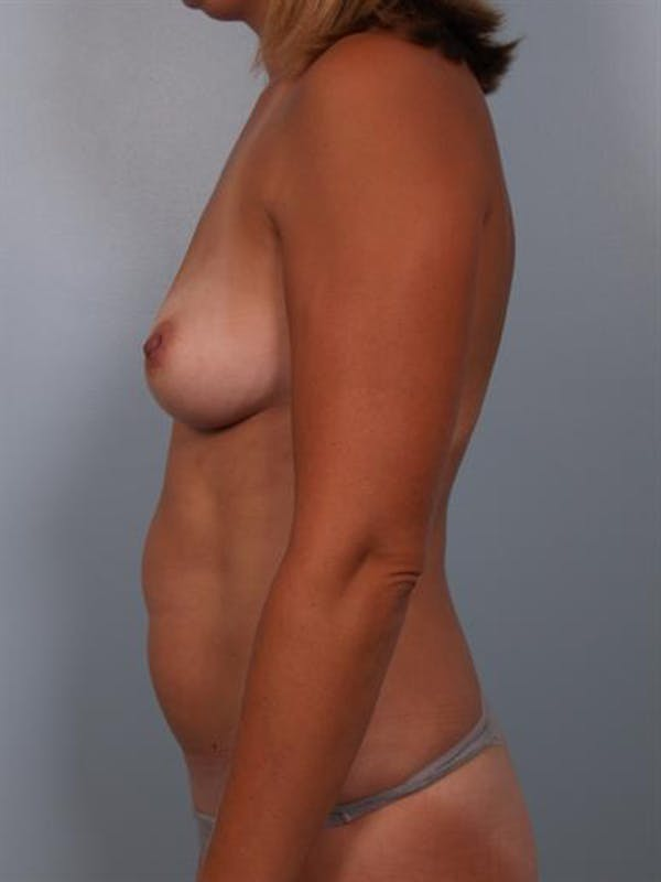Mommy Makeover Gallery - Patient 1310943 - Image 3
