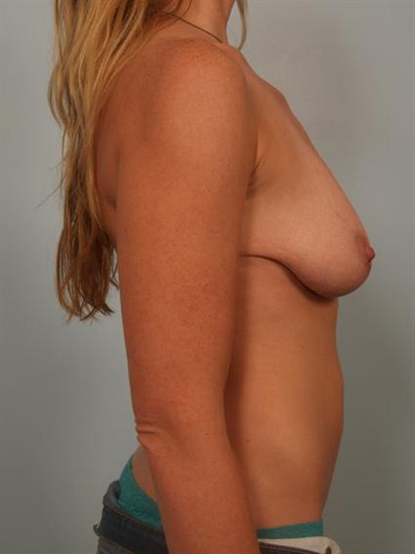 Power Assisted Liposuction Gallery - Patient 1310941 - Image 5