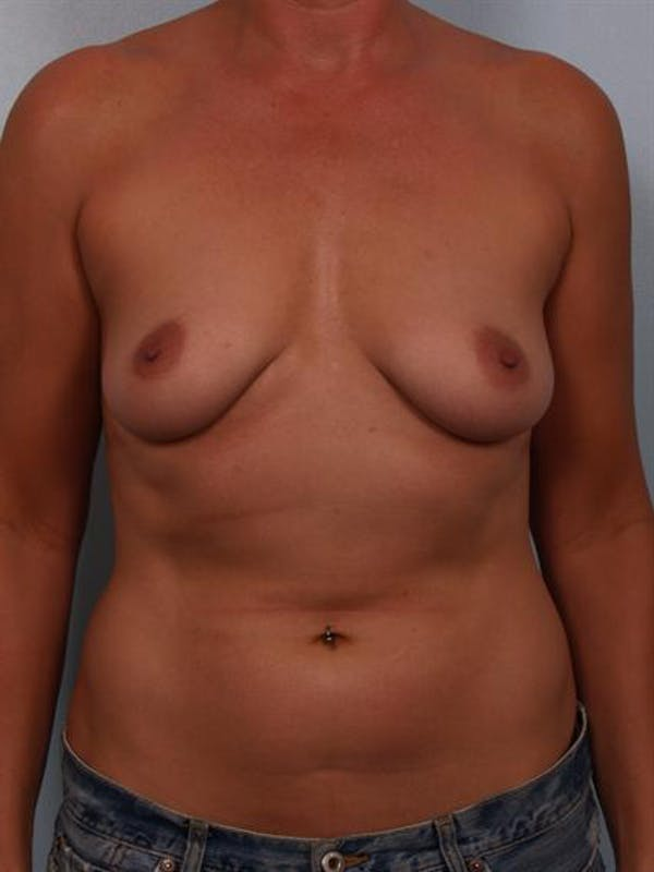 Breast Augmentation Gallery - Patient 1310946 - Image 3