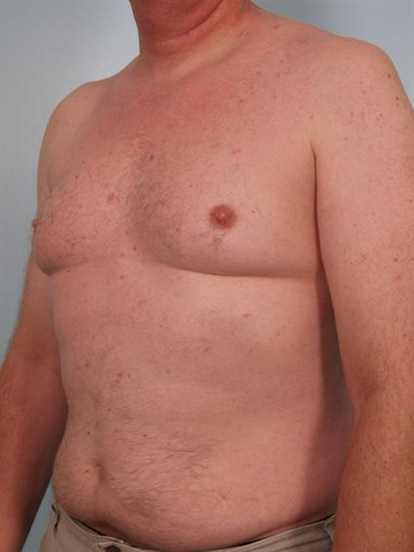 Male Breast/Areola Reduction Gallery - Patient 1310942 - Image 5