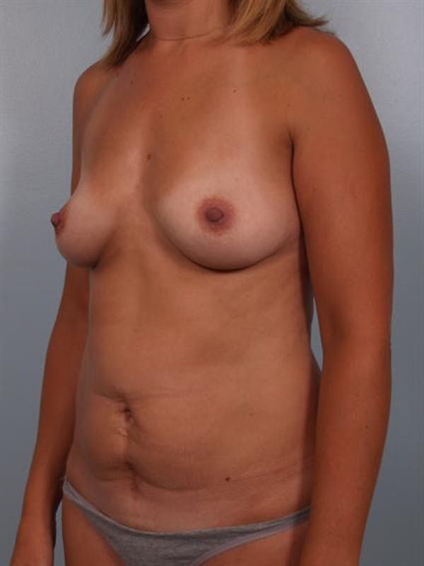Mommy Makeover Gallery - Patient 1310943 - Image 5