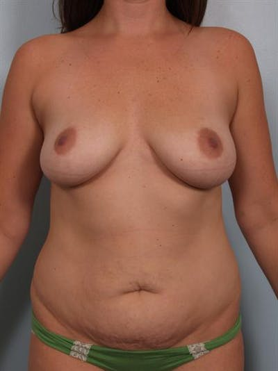 Tummy Tuck Gallery - Patient 1310948 - Image 1