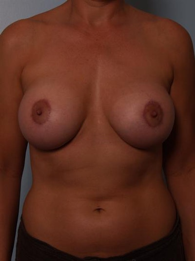 Breast Augmentation Gallery - Patient 1310946 - Image 4